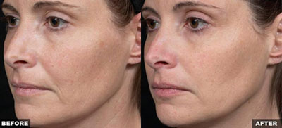 Thermage Skin Tightening Treatment